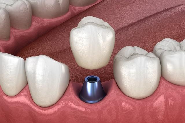 Ohne gaumenplatte zahnprothese Zahnprothese ohne